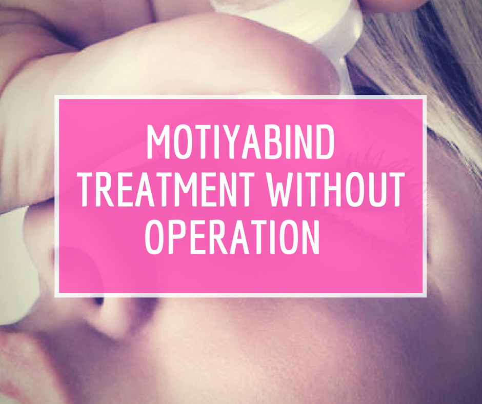Motiyabind treatment without operation in Hindi