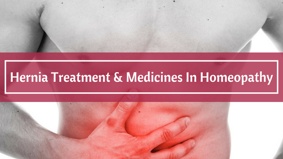 Hernia Treatment & Medicines In Homeopathy