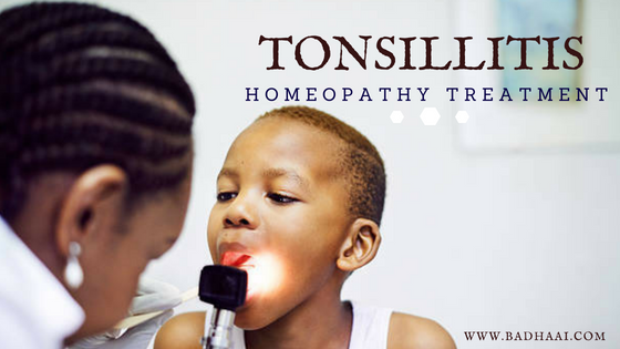Homeopathic Medicine For Tonsils [Tonsillitis]