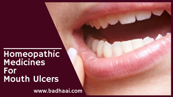 homeopathic medicine for mouth ulcers