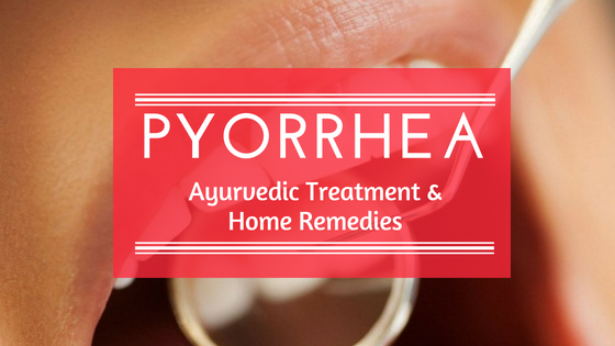 Ayurvedic Treatment And Home Remedies For Pyria [Pyorrhea]